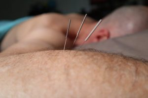puntos de acupuntura para bajar de peso